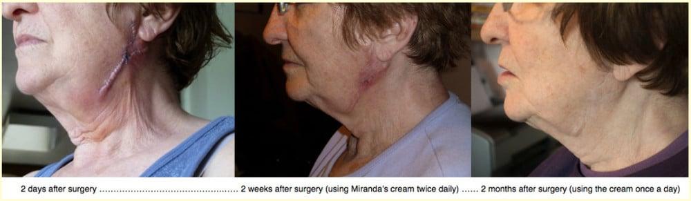 Testimonials Scars Cream Miranda Castro Homeopathy